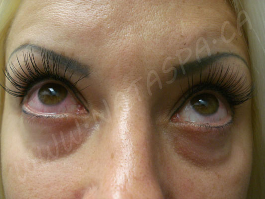 Permanent Eyelashes Before And After