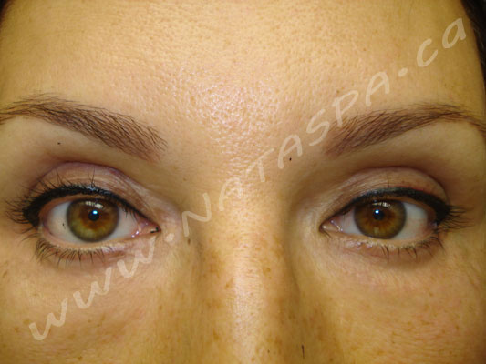 Permanent makeup before and after toronto concord for Tattoo removal in queens